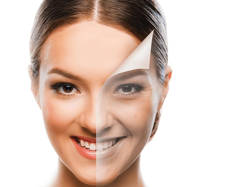 skin peeling treatment in delhi