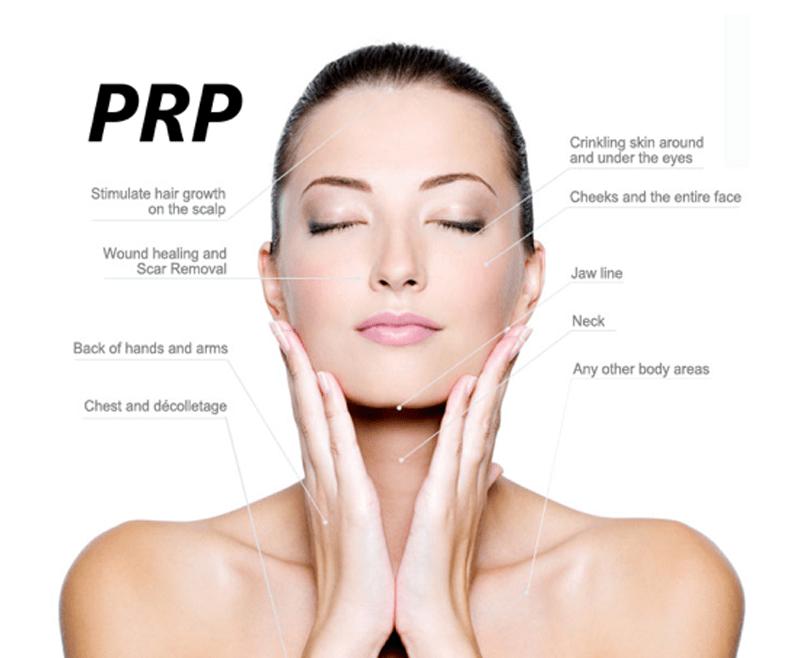 prp hairfall treatment in shalimar bagh