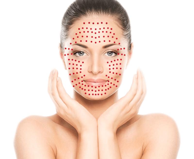 vampire facial treatment delhi