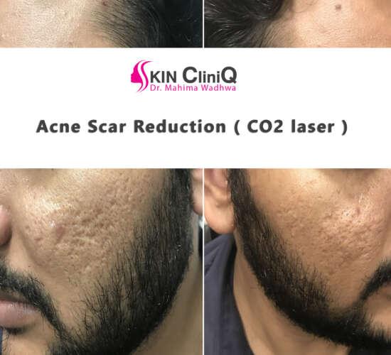 acne-scar-reduction