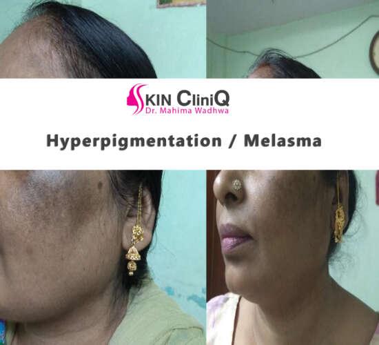 hyperpigmentation / melasma