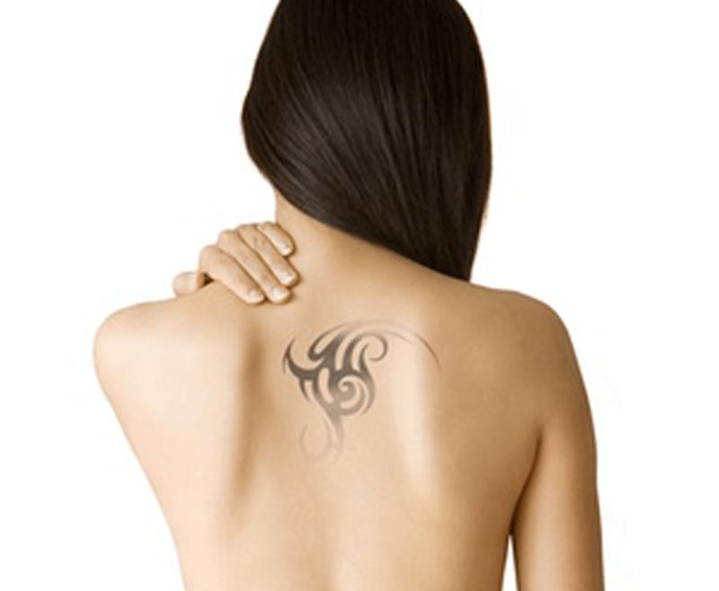 tattoo removal treatment in delhi