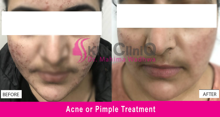 acne-or-pimple-treatment